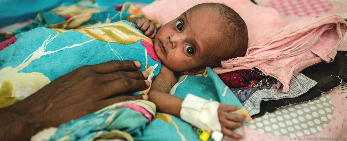Nälänhätä uhkaa miljoonia lapsia Somaliassa