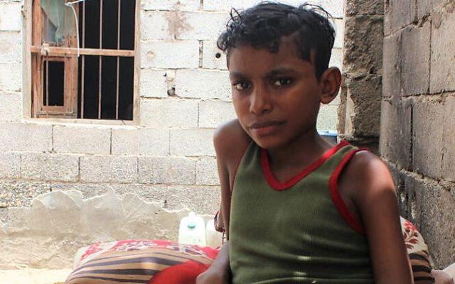Hintojen nousu ja valuutan arvon romahdus pahentavat Jemenin lasten nälkää